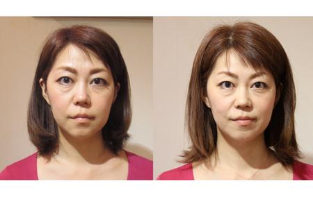 橋村様 顔 前後比較-のコピー-2 高画質.jpg