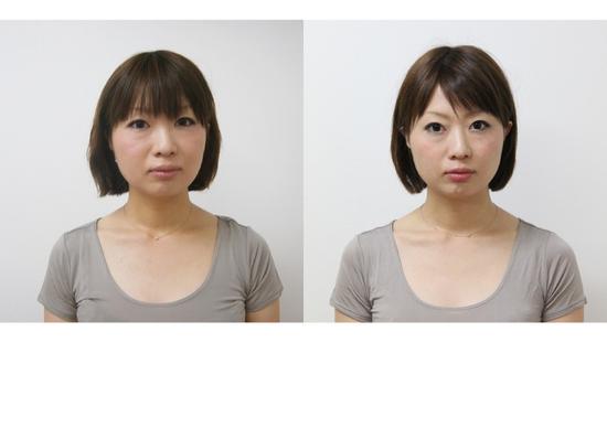 顔 美容矯正  Bパターン アップ.jpg